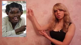 Необычные болезни меняющие людей до неузнаваемости