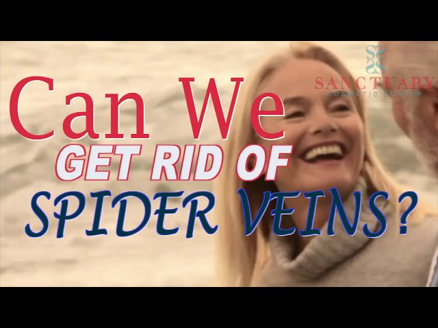 Can we get rid of Spider Veins? Treatment