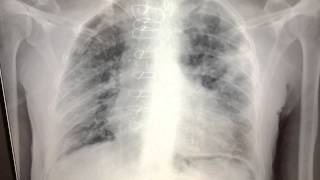immunocompromised fever CXR