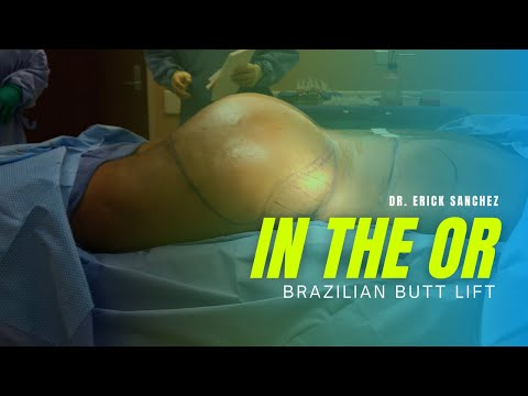 [IN THE OR] Brazilian Butt Lift by Dr. Erick Sanchez in Baton Rouge