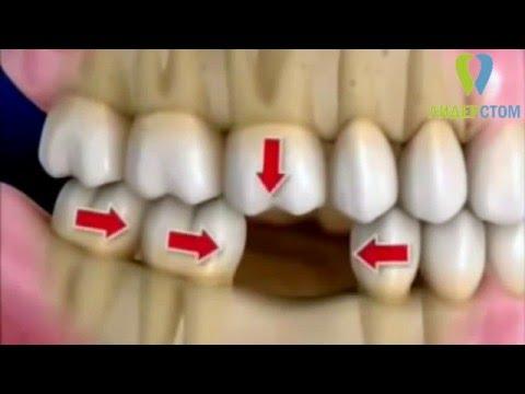 После удаления зуба нарушение жевательной нагрузки и смещение зубов