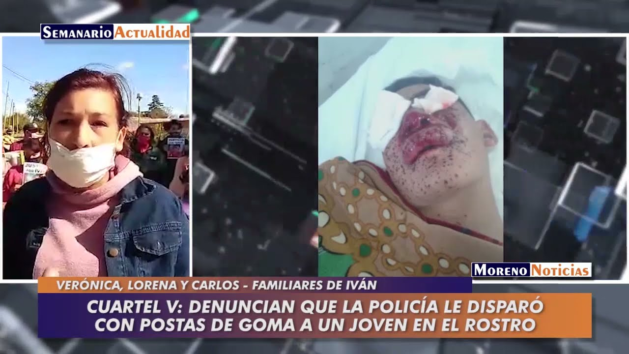 Cuartel V: Denuncian que la policía le disparó con postas de goma a un joven en el rostro