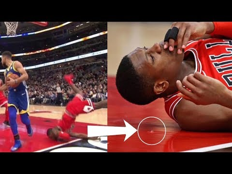 Kris Dunn Lands FACE FIRST After Dunk, Leaves His TEETH on the Court!!