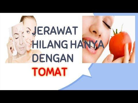 cara-mengobati-jerawat-dengan-cepat-hanya-dengan-tomat-|-tahukah-anda?-#8