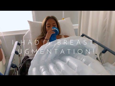BREAST AUGMENTATION | VLOG thumbnail