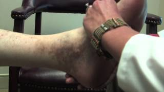 Chronic Venous Insufficiency and Wounds with Houston Surgeon Dr. Peter Morgan