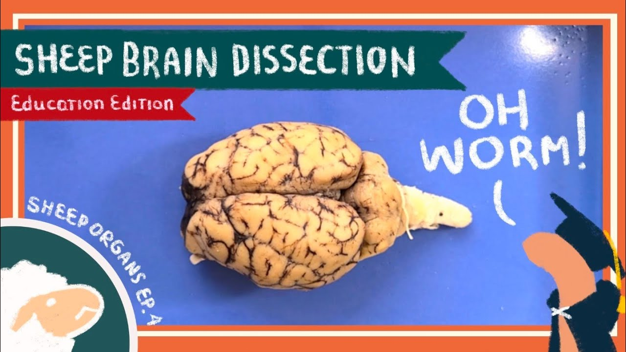 Brain Dissection || Always on My Mind