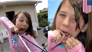 Храбрая девочка вырвала себе зуб с помощью стрелы и лука(К чёрту стоматологов, кому они нужны! Храбрая 11-летняя девочка вырвала себе зуб, привязав его к стреле и..., 2015-07-08T08:44:05.000Z)