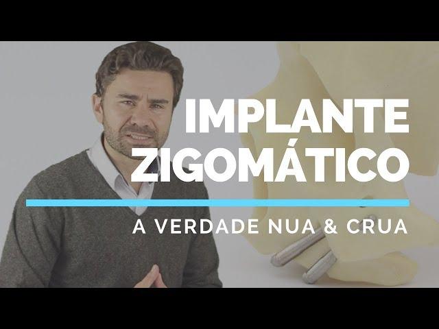A Verdade Nua e Crua sobre Implante Zigoma?tico