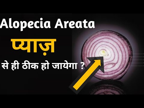 how to treat Alopecia areata naturally