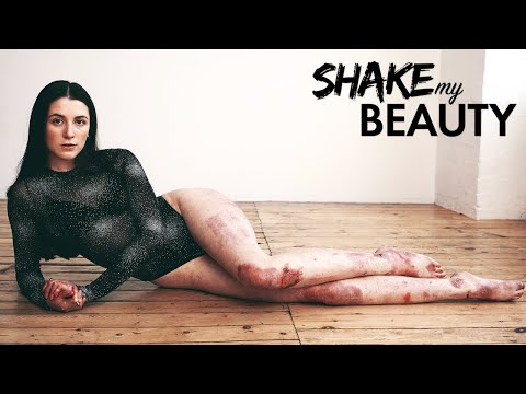 I Used To Hide My Skin, Now I'm Modelling For Vogue | SHAKE MY BEAUTY