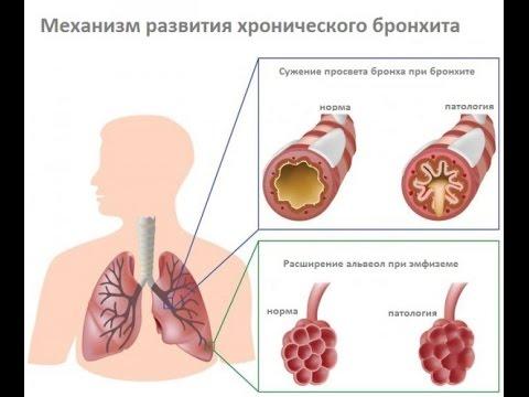 как вылечить простуду (ОРЗ), кашель, насморк, боль в горле