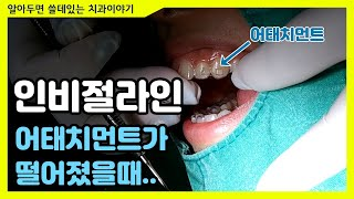 인비절라인 어태치먼트 떨어졌을때!! (치아교정 브라켓 …
