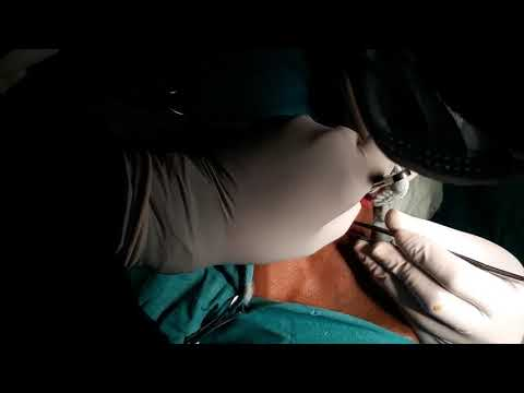 Total Thyroidectomy - Ca Thyroid (Papillary Carcinoma) - Part 1