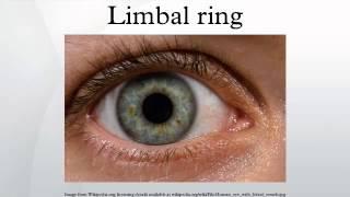 Limbal ring
