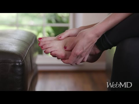 How to Ease Arthritis Foot Pain | WebMD