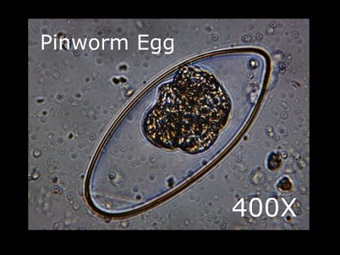 pinworms protozoa