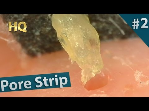 #2 Pore Strip Close up - Blackheads Removal