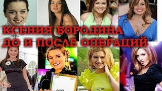 Как менялась Ксения Бородина до и после пластики