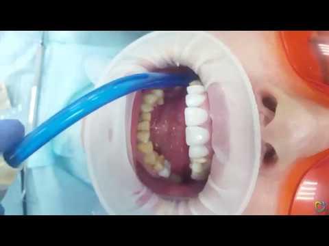 Установка циркониевых коронок (в клинике «Институт здоровья зубов»)