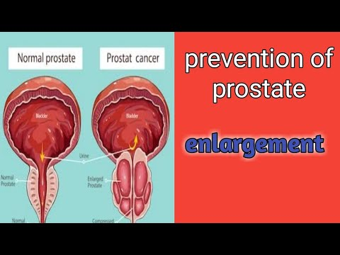 Prostate Enlargement frequent urination in night now got ...