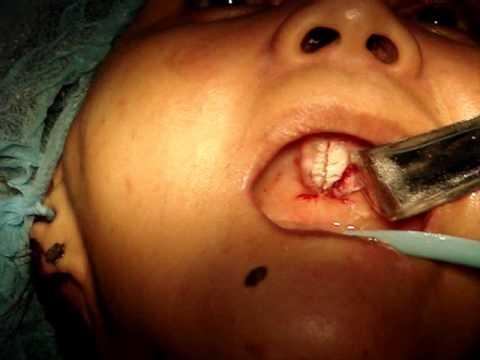 torus palatinus removal.wmv