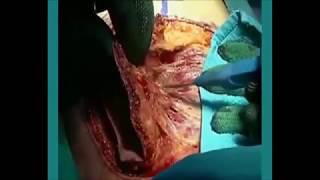 Repeat youtube video cirurgia mudança de sexo de mulher para homem - SRS FTM