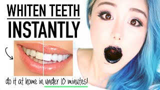 BEAUTY HACKS Whiten Teeth Instantly At Home in Under 10 Minutes Naturally ♥ Before & After Whitening