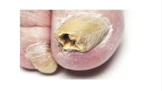Toenail Fungus Treatment: 3 Home Remedies That Work Fast