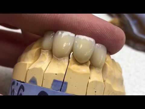 Нанесение керамики Emax на каркас из диоксида циркония. Керамика.