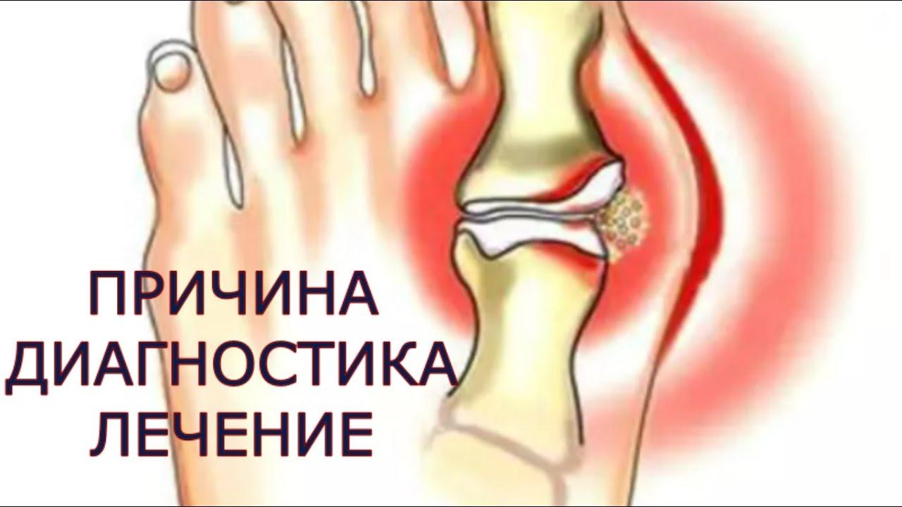 osteoartroza articulației umărului care tratează)