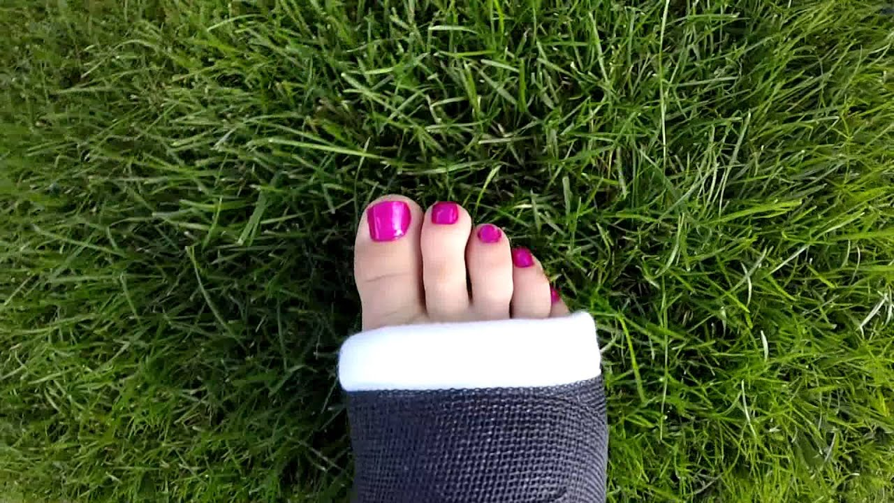 Jessie S Toes In A Black Cast Youtube