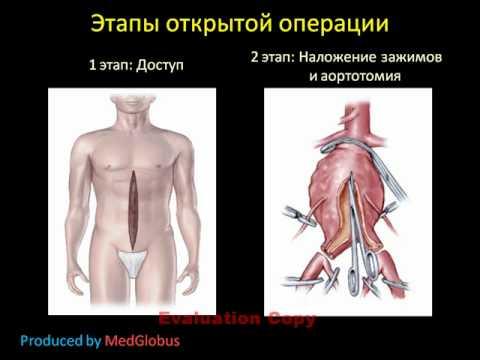 Аневризма брюшной аорты: определение, факторы риска, диагностика и ...