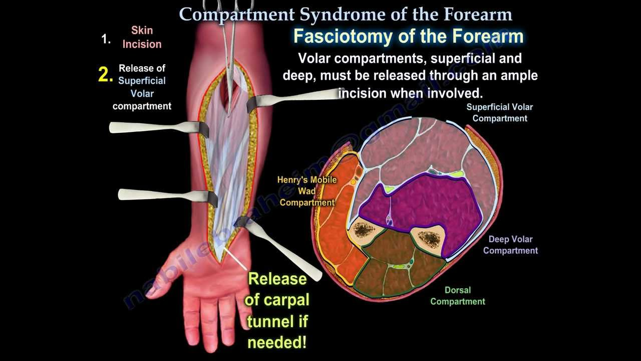 Compartment Syndrome Of The Forearm Everything You Need To Know