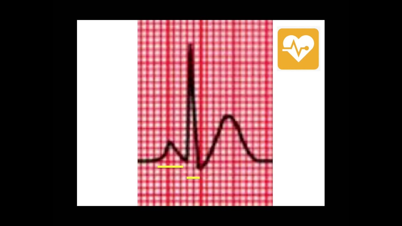 ECG Black Belt Program: Yellow Belt Level: ECG Question & Solution ...