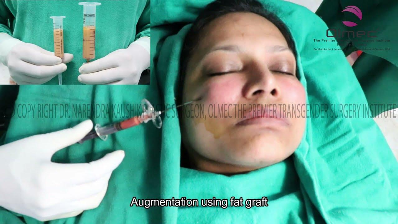 Facial Feminization Surgery Ffs, Male To Female -3318