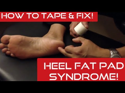how-to-tape-&-fix-heel-fat-pad-syndrome!-|-dr-wil-&-dr-k