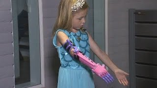 VIDEO: AJ girl with 3-D printed prosthetic arm to be featured on TLC