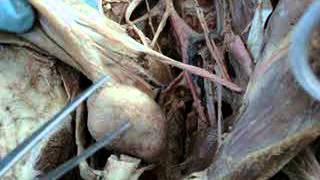 La interna de ilíaca dibujo arteria