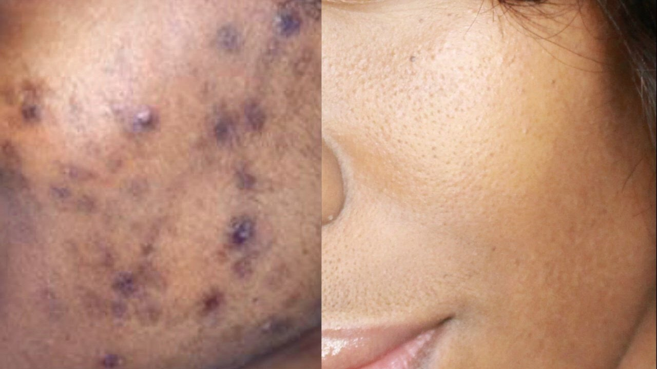 HOW TO GET RID OF HYPERPIGMENTATION, ACNE SCARS & DARK SPOTS NATURALLY
