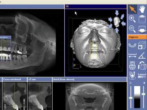 Dental Imaging Australia Sirona Galileos 3d Cone Beam