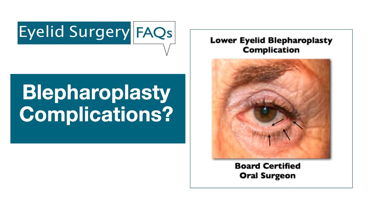an account of my successful blepharoplasty eyelid surgery Eyelid surgery, or blepharoplasty, is a surgical procedure that rejuvenates the eyelid contours by modifying skin, fat or muscles in the area.