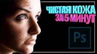 Чистая кожа в фотошоп ЛЕГКО Ретушь лица частотное разложение Как убрать прыщи в фотошопе