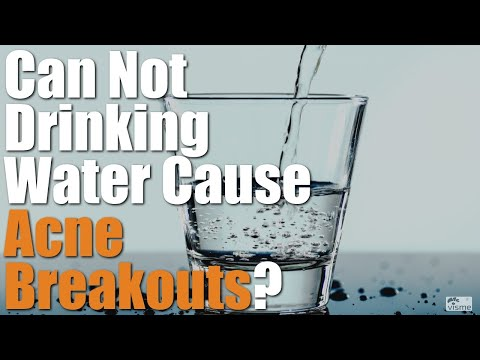Can Not Drinking Water Cause Acne Breakouts (Pimple Problem Fix)