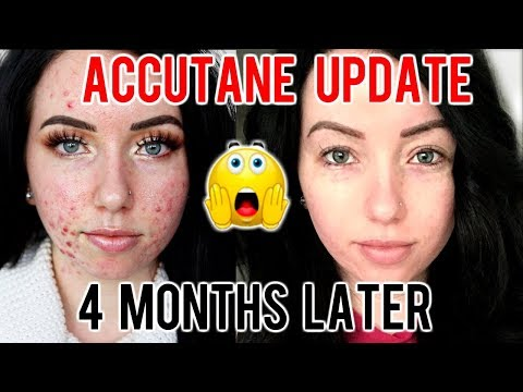 MY ACCUTANE JOURNEY 4 MONTH UPDATE Before & After, Progress, Side Effects.