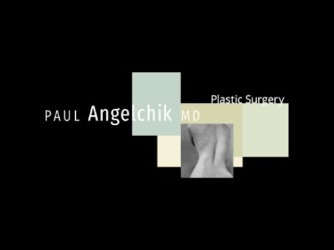 Breast Augmentation - Saline vs. Silicone Implants Explained By Plastic Surgeon Dr. Paul Angelchik