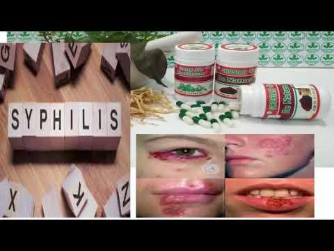 obat-sipilis-herbal-yang-ampuh-bersertifikat-halal---cs-konsultasi-083195066444