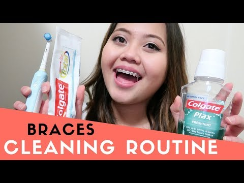 BRACES CLEANING ROUTINE | Best Products To Keep Teeth White, Hygiene
