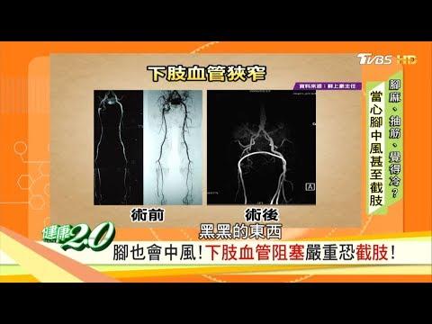 天冷雙腳冷吱吱,腳也會中風!下肢血管阻塞嚴重恐截肢 健康2.0