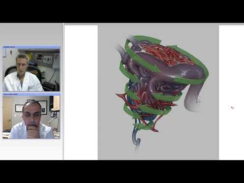 Cerebral Arteriovenous Malformation (AVM) | Dr. Komal Prasad C.